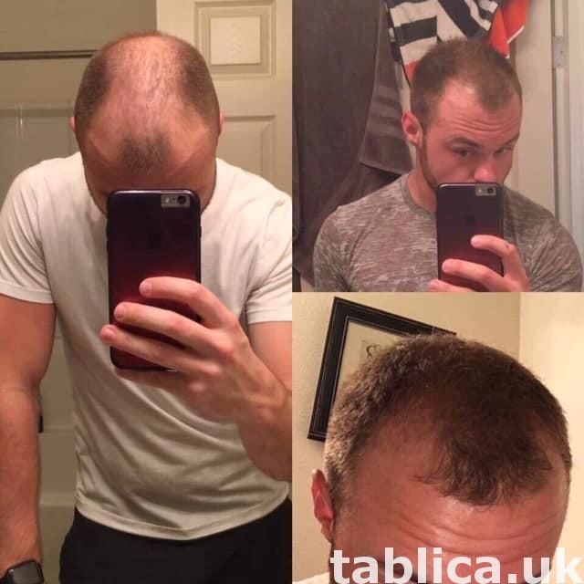 hair treatment  2